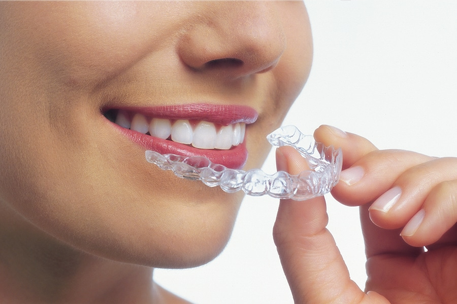 Clear Aligners Photo