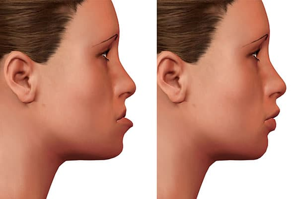 Surgical Orthodontics Image